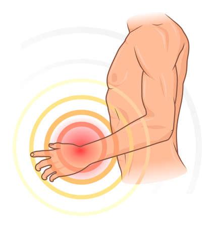 Hand pain Stock Illustratie