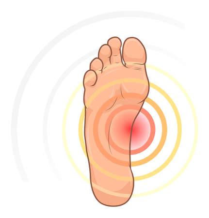 Foot with pain illustration Illustration