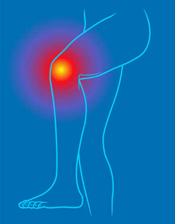 Knee pain line illustration on blue background Stock Illustratie