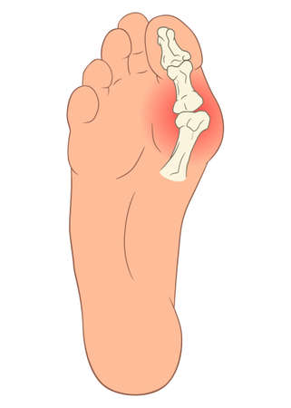 Hallux valgus foot deformation. Medical vector illustration