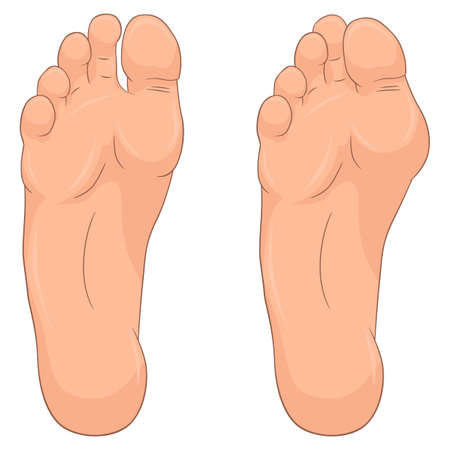 Hallux valgus and healthy foot. Medical vector illustration Ilustracja