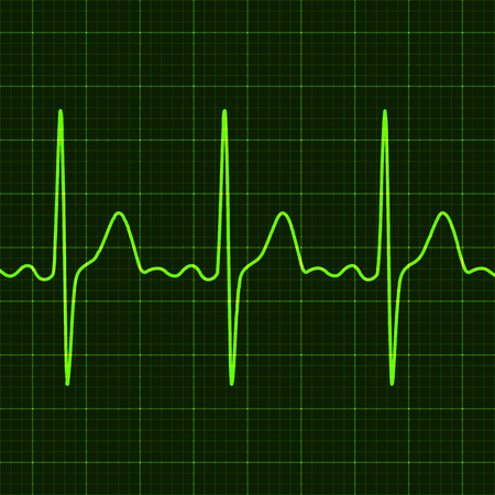 norm: Cardiogram on digital device monitor.