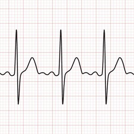 Graphic representation of heart work.