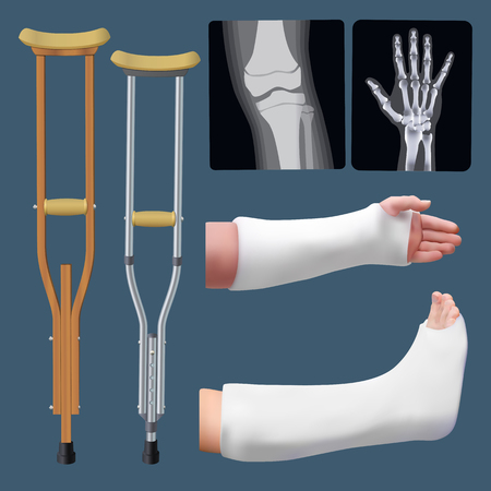 Set of medicine traumatology objects. Treatment of bone fracture. Plaster splint, crutch, x-ray. Isolated objects. Vector illustration.