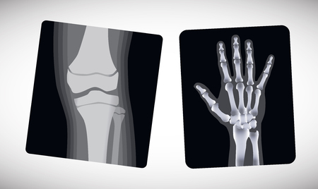 upper leg: X-ray of the hand and foot. Vector illustration Illustration