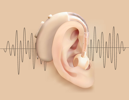 Illustration of a hearing aid behind ear on a background of sound wave pattern. Illustration