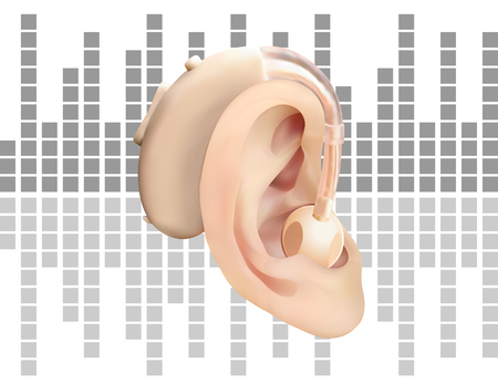 Digital hearing aid behind the ear, on background of sound wave diagram. Treatment and prosthetics of hearing loss in otolaryngology. Realistic vector illustration. Medicine and health.