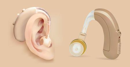 Vector audífono detrás de la oreja. Amplificador de sonido para pacientes con pérdida auditiva. Tratamiento y prótesis en otorrinolaringología. Medicina y salud. Objeto realista. Ilustración de vector