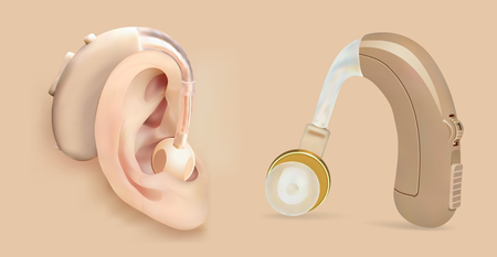 Vector hearing aid behind the ear. Sound amplifier for patients with hearing loss. Treatment and prosthetics in otolaryngology. Medicine and health. Realistic object. Vectores