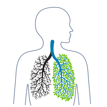 Tuberculosis. Lung disease. Lungs cancer. Promotion of healthy lifestyles. Medicine, health and ecology. Vector illustration