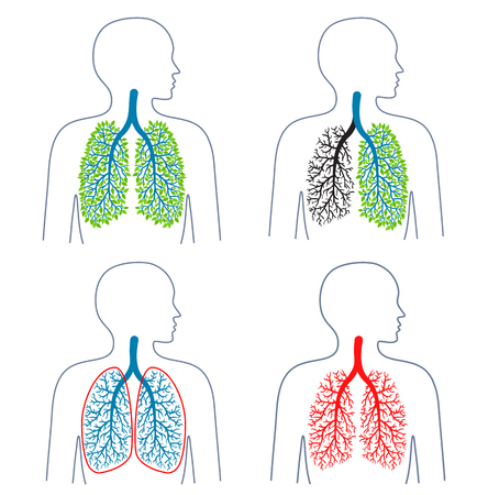 Set of illustrations of respiratory system theme.Tuberculosis. Lung disease. Lungs cancer. Promotion of healthy lifestyles. Medicine, health and ecology. Vector illustration. Illustration