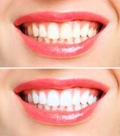 woman teeth before and after whitening. Over white background. Dental clinic patient. Image symbolizes oral care dentistry, stomatology Stock Photo