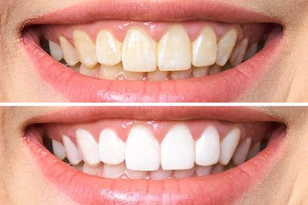 dientes de mujer antes y después del blanqueamiento. Sobre fondo blanco