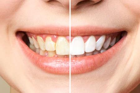 dientes de mujer antes y después del blanqueamiento.