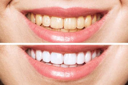 dientes de mujer antes y después del blanqueamiento. Sobre fondo blanco. Paciente de la clínica dental. La imagen simboliza la odontología del cuidado bucal, la estomatología.