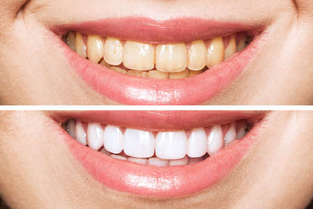woman teeth before and after whitening. Over white background. Dental clinic patient. Image symbolizes oral care dentistry, stomatology.
