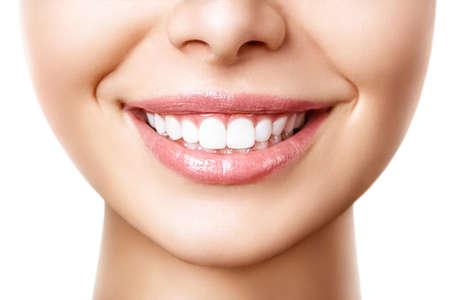 Schönes weibliches Lächeln nach Zahnaufhellungsverfahren. Zahnpflege. Zahnheilkunde-Konzept. Standard-Bild