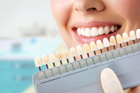 Smiling young woman. Cosmetological teeth whitening in a dental clinic. selection of the tone of the implant tooth