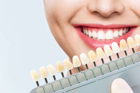 Smiling young woman. Cosmetological teeth whitening in a dental clinic. selection of the tone of the implant tooth Stock Photo