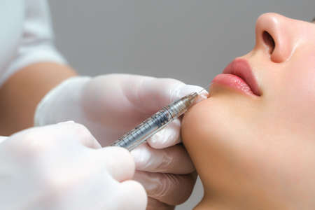 lip shape correction procedure in a cosmetology salon. The specialist makes an injection on the lips of the patient. Lip augmentation Stock Photo