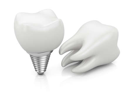 Tooth and dental implant isolated on white