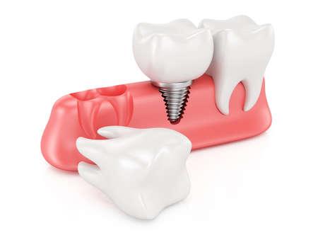Dental implantation concept isolated on white background  3d rendering illustration