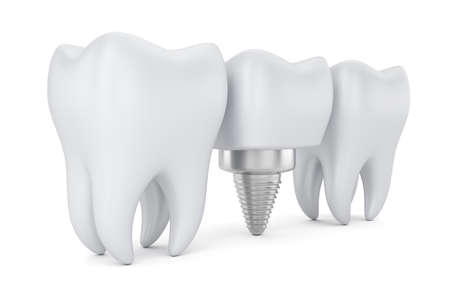 Teeth and dental implant isolated on white background. 3d render