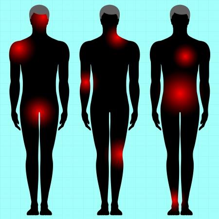 dolor muscular: cuerpo humano con el área del dolor