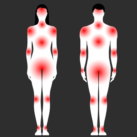 menschlichen K�rper mit einer Fl�che von Schmerz Illustration