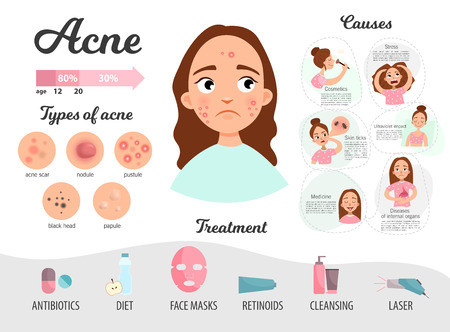 Infographics of acne. Causes of the disease, treatment. Types of acne