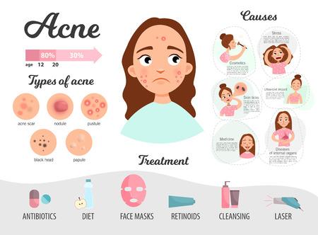 Infografica di acne. Cause della malattia, trattamento. Tipi di acne