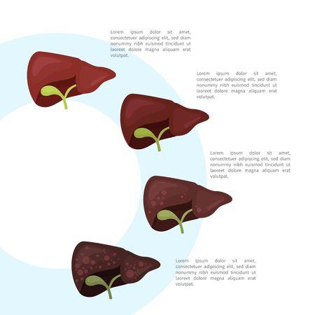 Stages of liver destruction. Liver disease. Infographics. Illustration