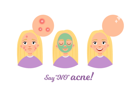 Cleansing the skin of the face. Before and after. Getting Rid of Acne. Illustration