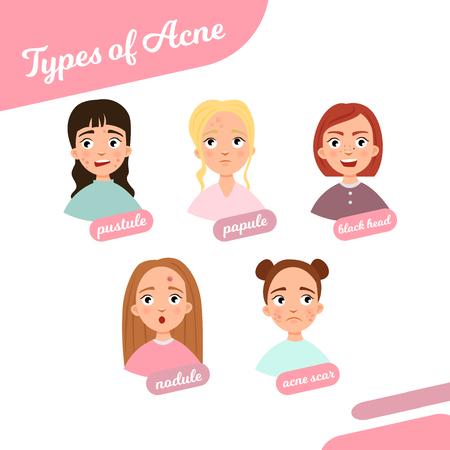 Types d'acné. Illustration de filles avec différents problèmes de peau.