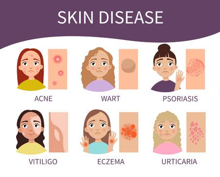 Infographics skin diseases. illustration of cute girls Illustration