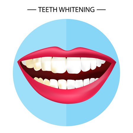 woman teeth before and after whitening Stock Vector - 106554615