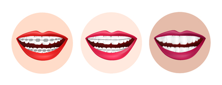 Illustration of different methods of teeth alignment. Metal braces, ceramic braces and invisible braces