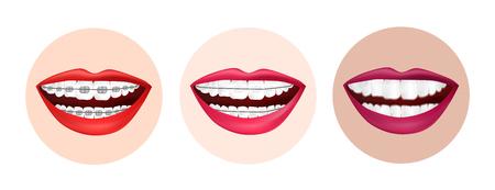 Illustration verschiedener Methoden der Zahnausrichtung. Metallklammern, Keramikklammern und unsichtbare Klammern Vektorgrafik