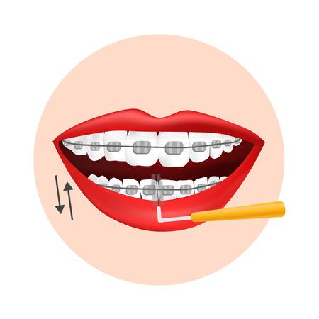 Vector illustration. Using interdental brush for orthodontic braces Standard-Bild - 111919429