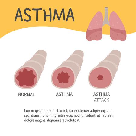 El concepto de ataque de asma. Ilustración de bronquios. Plantilla para folletos médicos, revistas, carteles.