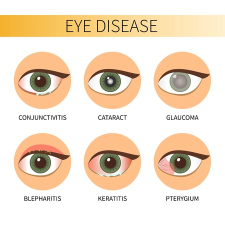 Eye diseases vector illustration.