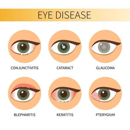 Eye diseases vector illustration.