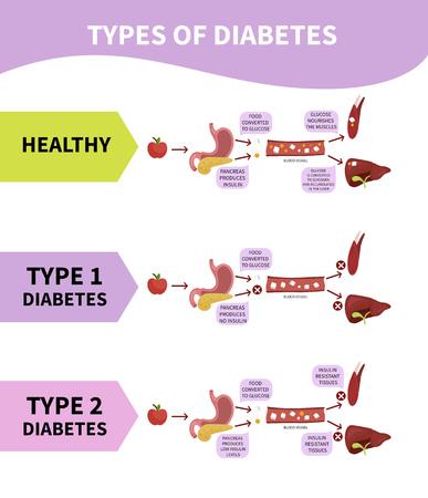 Medische schema soorten diabetes.