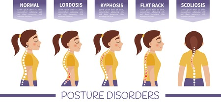 Infographics of posture disorders.  Types of posture. Illustration of cute girl.