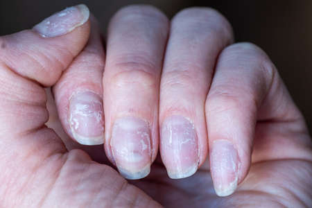 Close-up of brittle nails. Damage to the nail after using shellac or gel polish. Peeling on the nails. Damage to the nail. Shattered nails