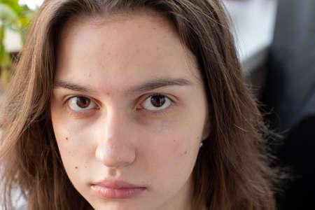 Nahaufnahmegesicht eines kaukasischen Mädchens mit Akne. Verstopfte Poren Chemikalien und Staub verursachen Akne. Hautproblem.