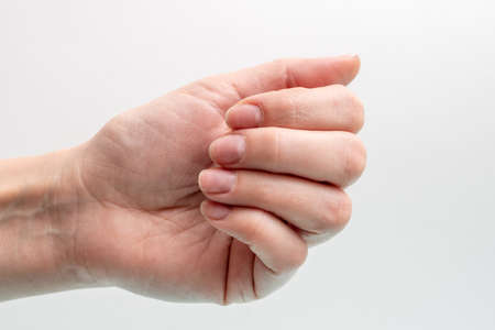 Close-up of a Caucasian female hand with natural unpolished nails, overgrown cuticle on a white background, top view, copy space. Natural nails concept, raw nails Reklamní fotografie