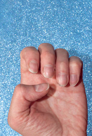 Close-up of weak broken natural nails devoid of nutrients, no manicure on a blue shiny background.