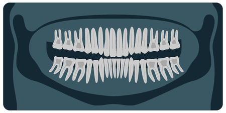 Panoramic dental X-Ray. 32 healthy tooth on x-ray. Vector illustration  イラスト・ベクター素材