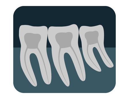 X-ray of human teeth. Three healthy molars on an x-ray. Vector illustration